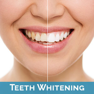 Teeth Whitening near Rescue
